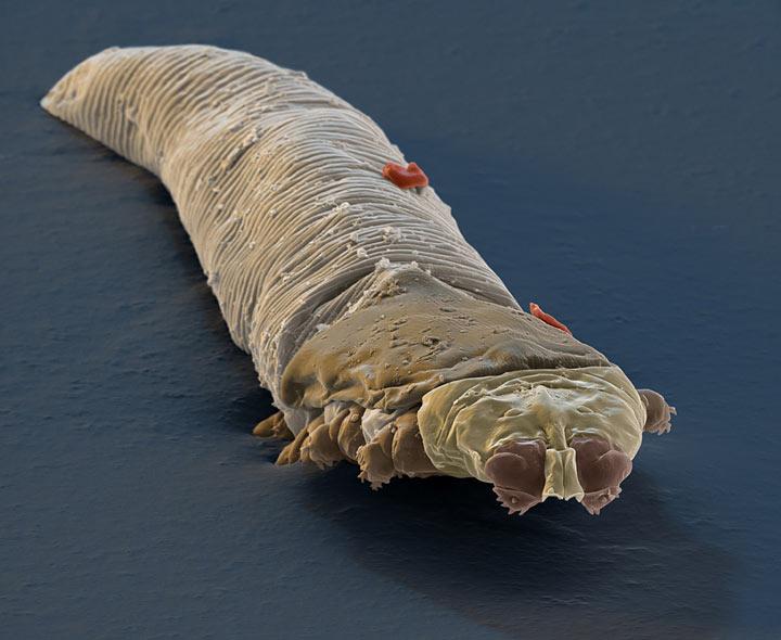 паразит живет в каждом человеке