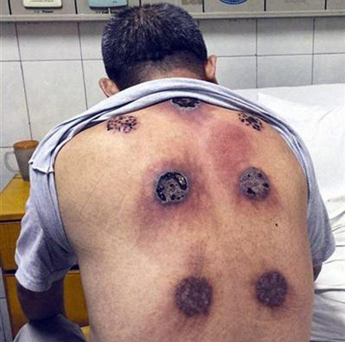Этот парень решил подлечить больное плечо. В результате он оказался в реанимации! (18+)