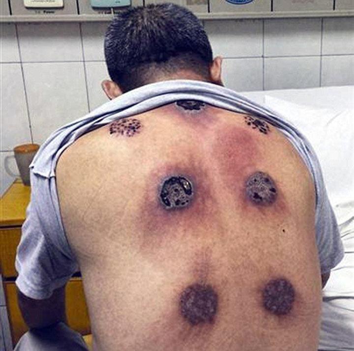 Синяки на спине у ребенка фото