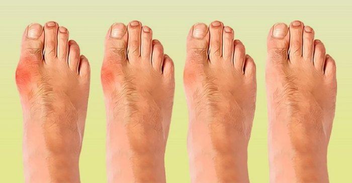 5 способов избавиться от косточки на ноге без помощи хирурга. Конец страданиям!