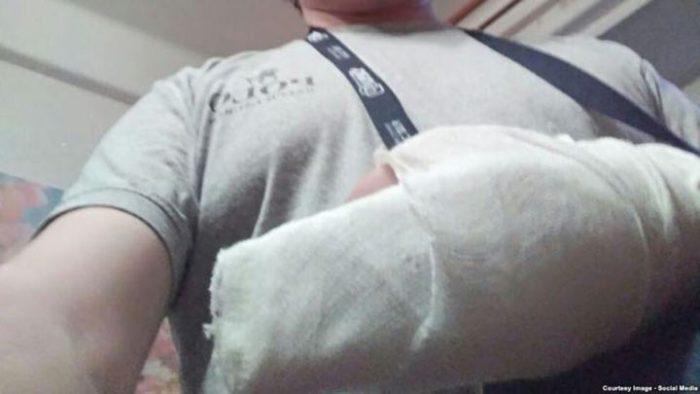 Мужчина Сломал Все Пальцы На Руке, Поймав Девочку, Упавшую С 8 Этажа