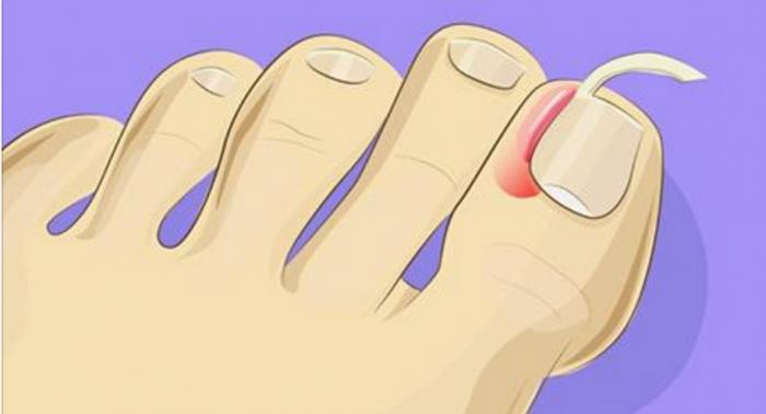 Врастание ногтей – серьезная проблема. Но от нее можно легко избавиться в домашних условиях