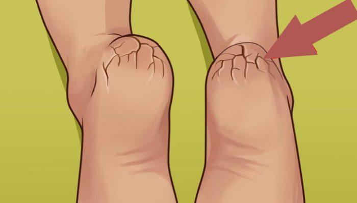 Если вы страдаете от сухой кожи на ступнях, обязательно прочтите эту статью!