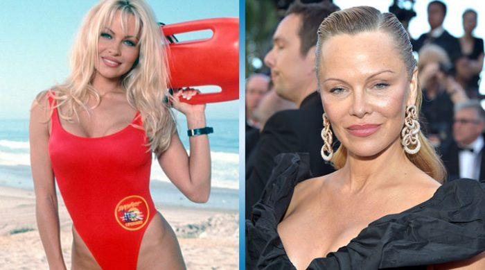 """20 знаменитостей, которые лишились своей красоты вследствие чрезмерного увлечения """"Пластикой"""""""